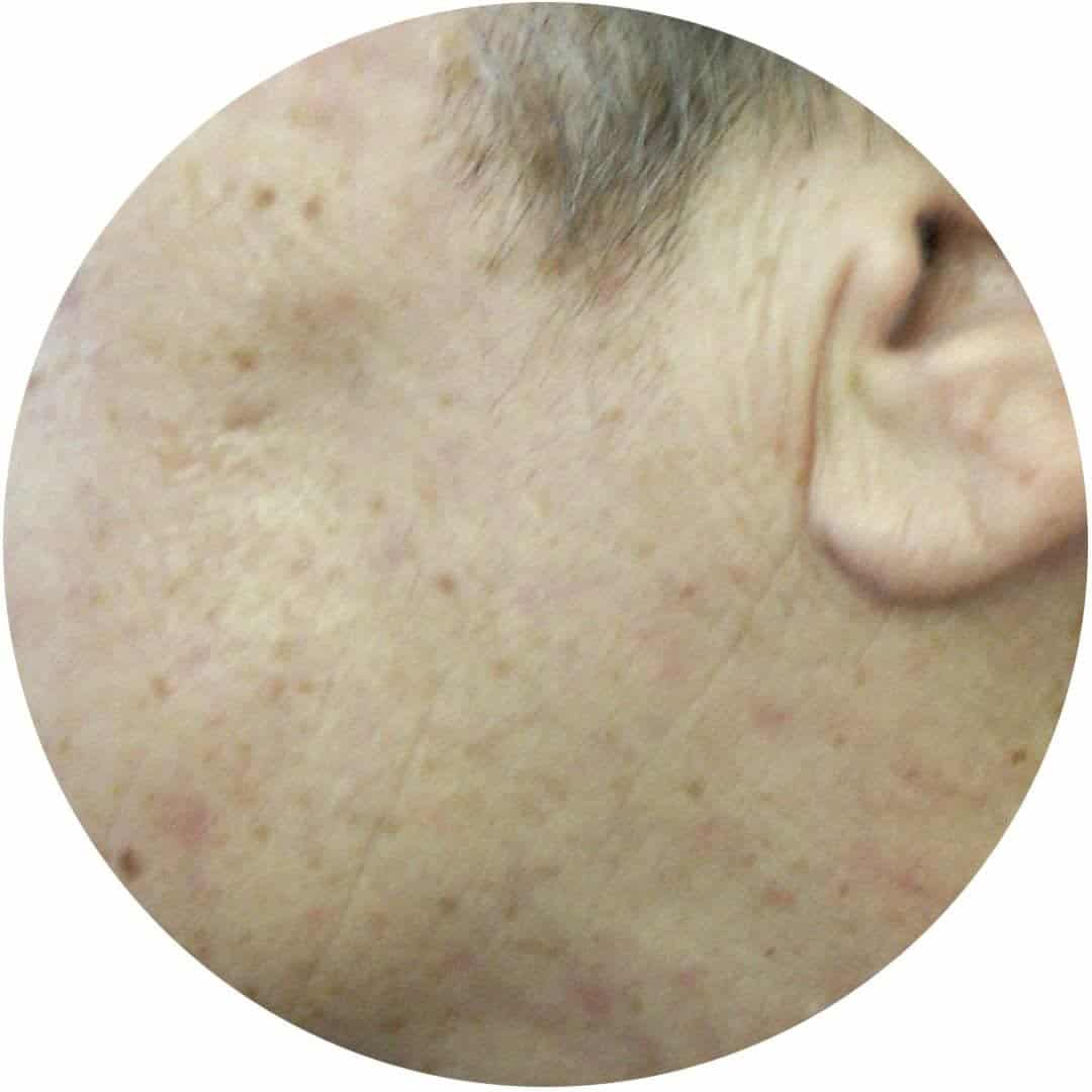 After-Odstranjevanje koznih tumorjev 2