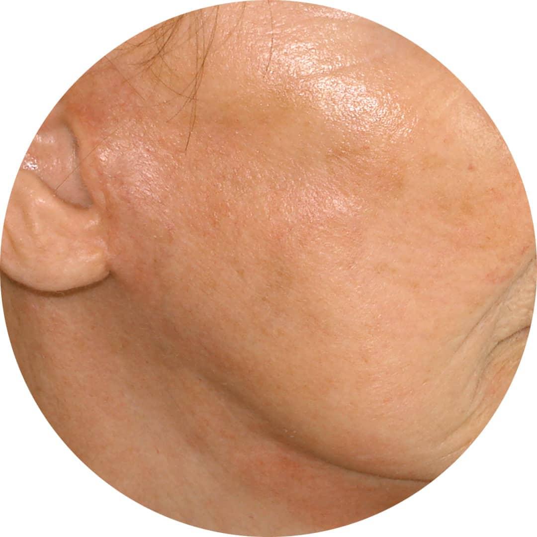 After-Pomlajevanje obraza 6