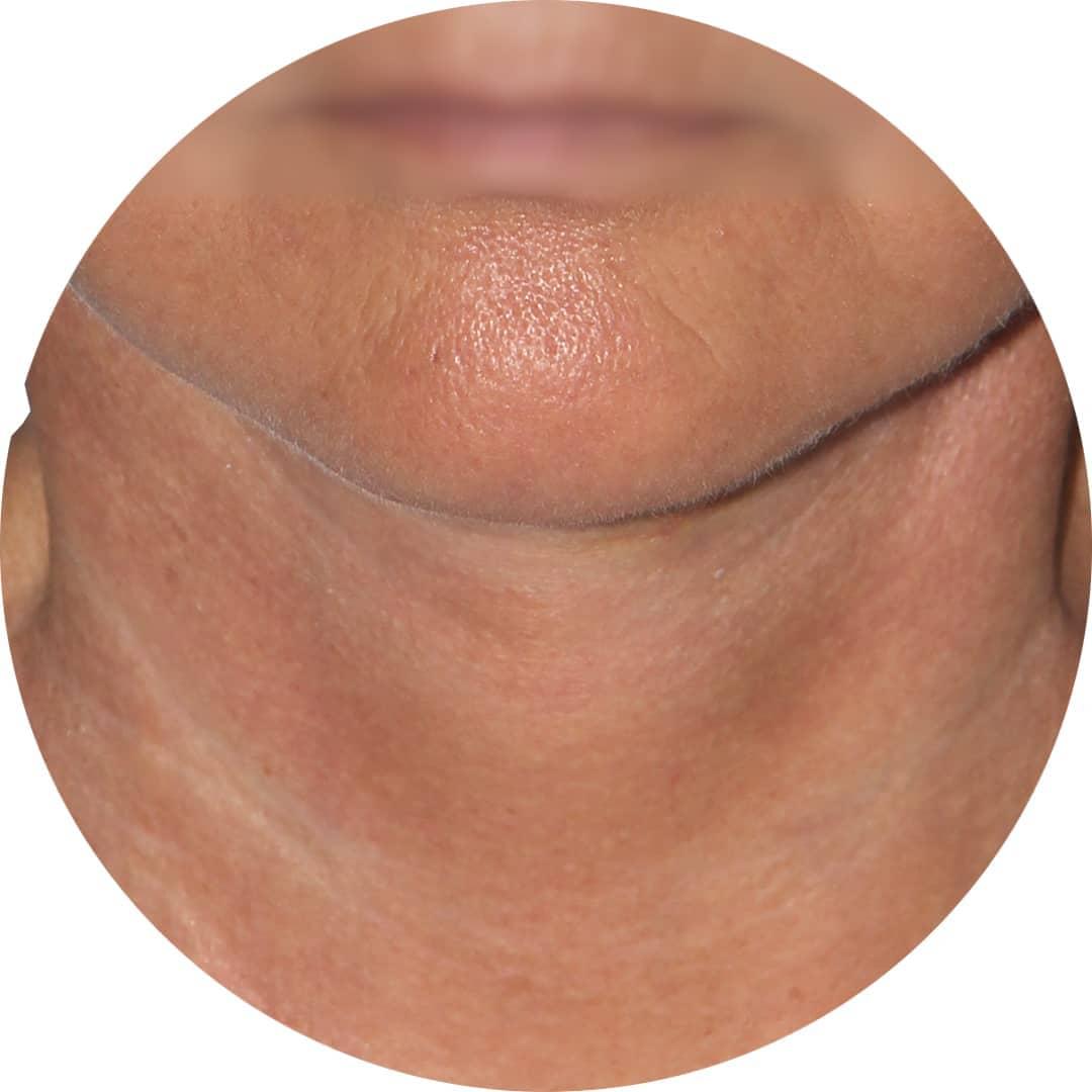 After-Pomlajevanje obraza 2