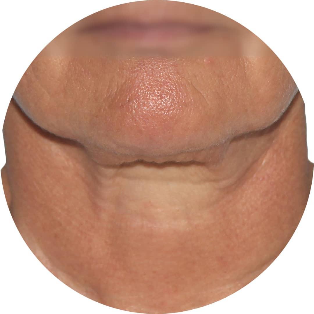 Before-Pomlajevanje obraza 2