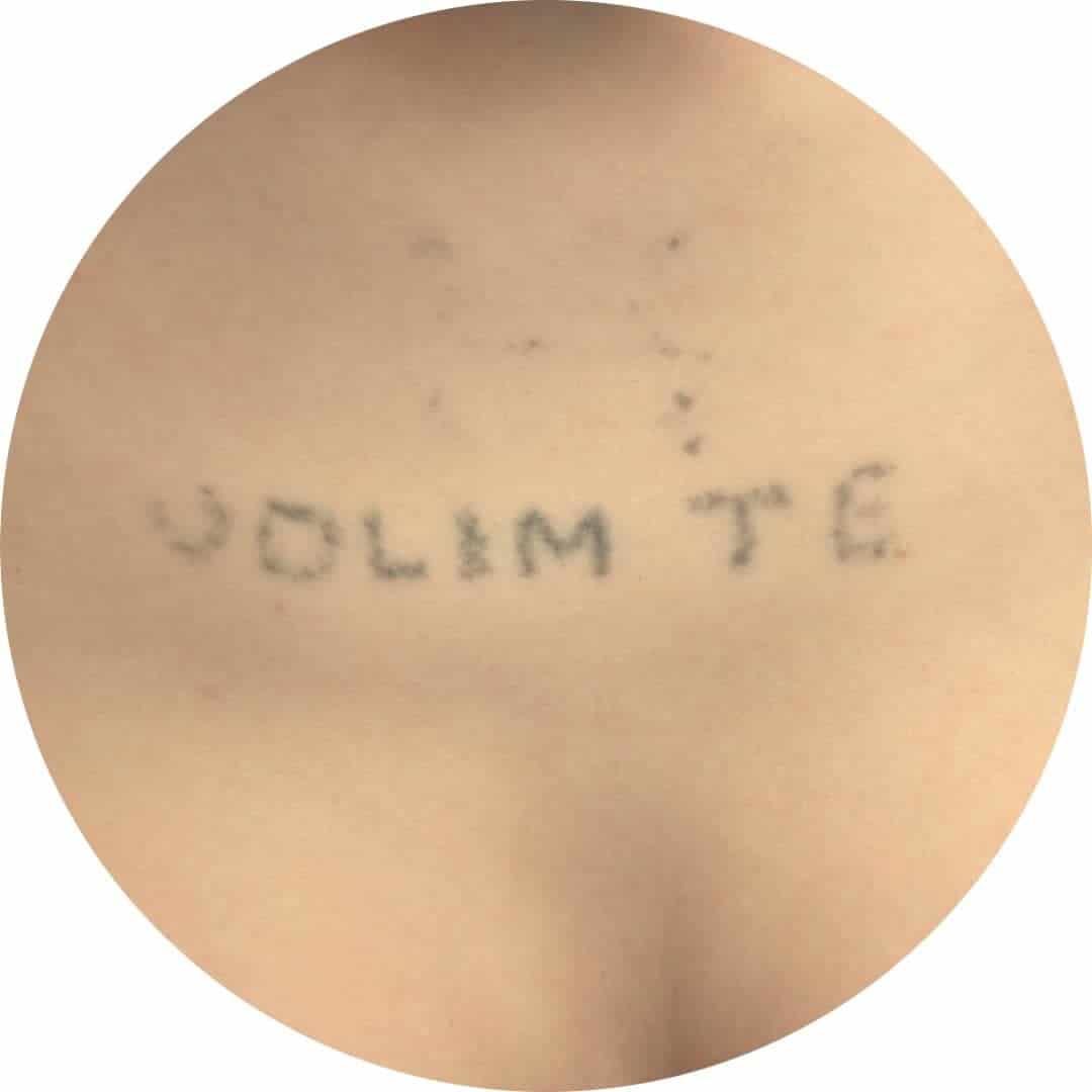 Before-Odstranjevanje tetovaze 2